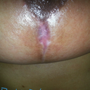 Right breast, healed wound all new skin.