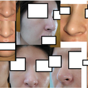 collage of different angles, nostrils flare when smiling.