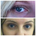 My other eye before and after, 8 months later. Still no veins!