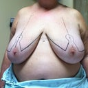 Day of surgery, surgeons markings - 804 grams was removed from my right breast and 769 grams from my left.  My right breast was more dense.