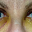 Day 5 - under eye swelling significantly reduced. Lots of yellowing.