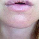 my right lip (left on the picture) is lumpy and hanging down