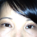 is left eye swollen?