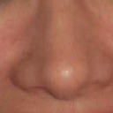 After Closed Rhinoplasty, Bulbous, muddled and rounded tip