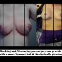 After BR, A. nipples were placed laterally B. nipples more centered
