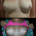 Day 2 before and after comparison bra off