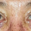sign of bad change after lower lid surgery why would an EXPERT at asian eyes sew mine up like this.liar