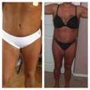 My before and after of lipo.....lipo of upper abdomen,flanks,and stomach,inner thighs
