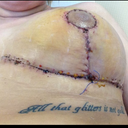 1 week post op..stitches & staple removal (the good side)