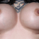 my breasts before the procedure
