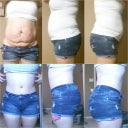Tummy tuck & 1st fat transfer to buttocks.