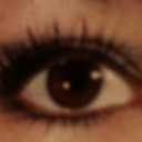 Before botched surgery look at my beautiful lashes.