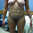 PS markings just prior to surgery. The top of the triangle on each breast is where the nipple will be placed during the breast lift.