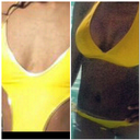 Before and after bikini shots