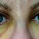 Day 7 - not a lot of change from yesterday. Bit less yellow and the right eyelid doesn't feel swollen anymore.