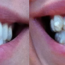 Pre Invisalign vs Tray 12 closed bite