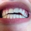 Biting down... not touching. Two front teeth veneers. Please help!!