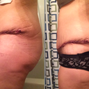 Standing a lot straighter! Slightly less swollen. PO day 4 and day 12.