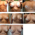 5 months progression. Capsular Contracture (CC) in left breast.