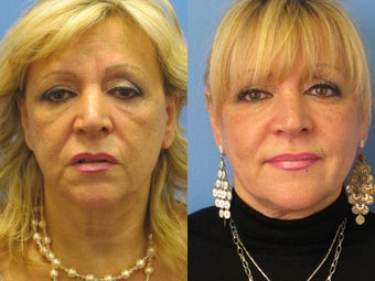 Exilis skin tightening of face before 938965