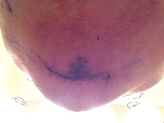 Chin sutures. Two days out.  Dark area is a bit of bruising.