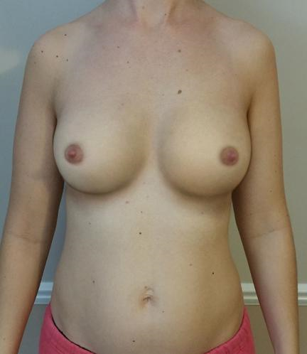 Breast Implants: Silicone Vs Saline, Cost, Problems,