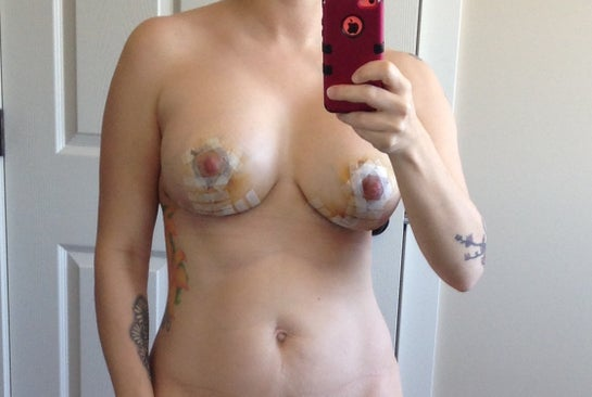 Breastsurganz - Update on information about breast implant