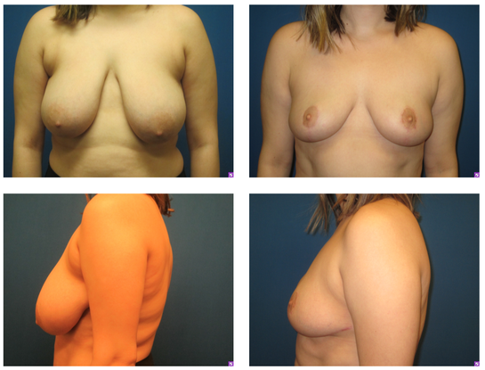 Breast reduction surgery recovery stories