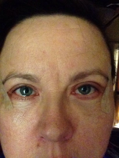 3weeks, eye scars quite red