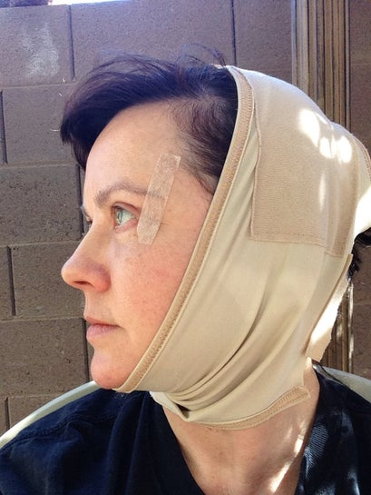 22 days post op.  The lovely head compression garment!