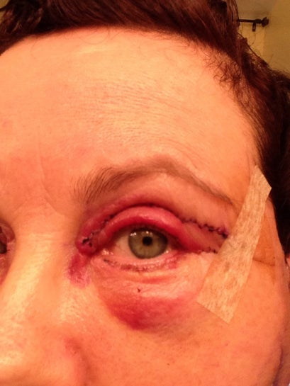Left eye, swollen, no pain.  Lower stitches are on the exterior of lid.