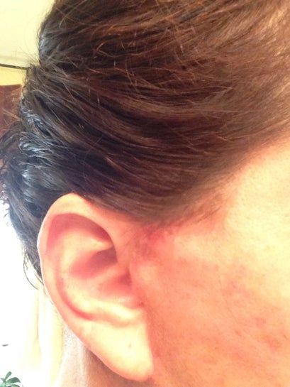 Front right ear, this side healing a little slower, may need some coverage at work