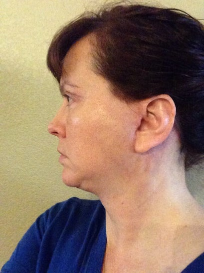 20 days left side. Not digging the neck swelling!