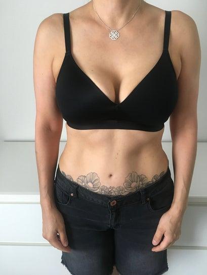 53 Yr Old, Explant  Lift, Perth, Au - Breast Implant -7076