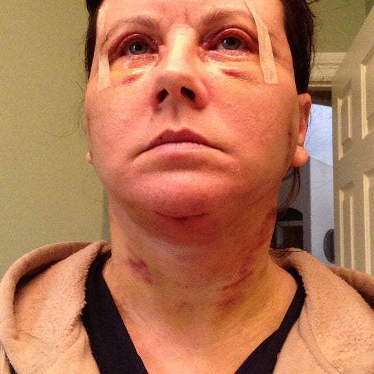 Neck still looks good.  Bruises from head wrap.