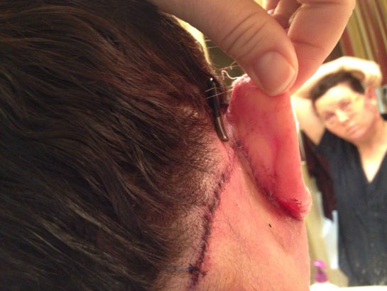 Behind ear and hairline stitches.  Notice doc's meticulous stitching!  No staples for me!