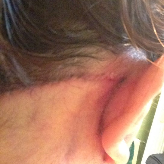 Back of right ear and hairline stitches.  Three days out.