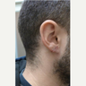 25-34 year old man treated with Ear Lobe Surgery