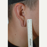 35 year old man desired gauged earlobe repair