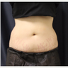 18-24 year old woman treated with SculpSure
