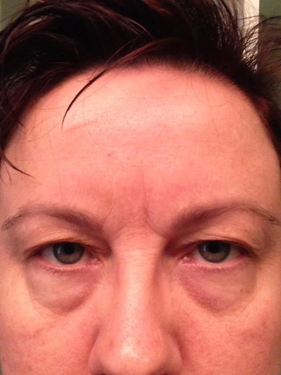 Droopy Eyelids! Feb 10 2017
