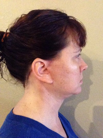Three weeks post op right side, light bruising and front of ear scar somewhat visible