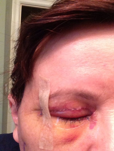 Right eye.  Bruising starting to yellow.