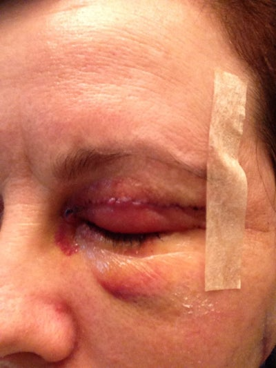 Left eye.  Bumpy near stitches on top lid. no pain.