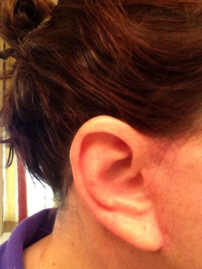 Front of right ear,  3 weeks