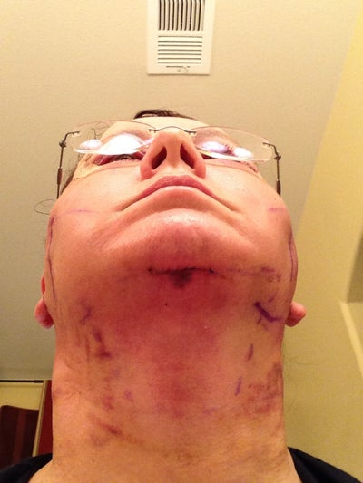 Chin incision.  Other marks are surgeon's pen and bruising from head wrap.