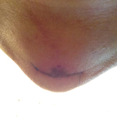 Four days out.  Chin scar.  Line is the dr's pen mark