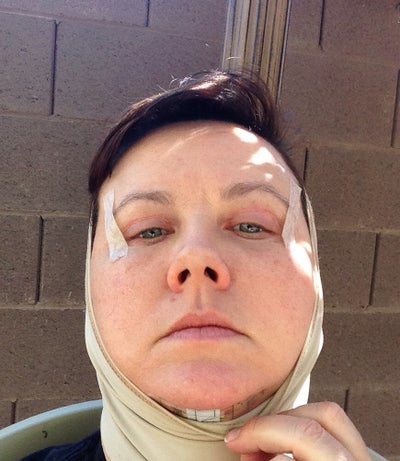 22 days out.  Showing my chin incision bandage to protect the healing scar.