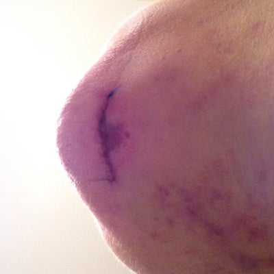 Chin scar and bruising